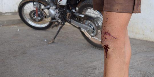 mulher-baleada-tentativa-assalto-brumado-noticias-67